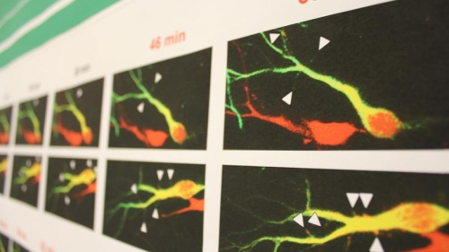 Neuroscience Day poster detail 2017