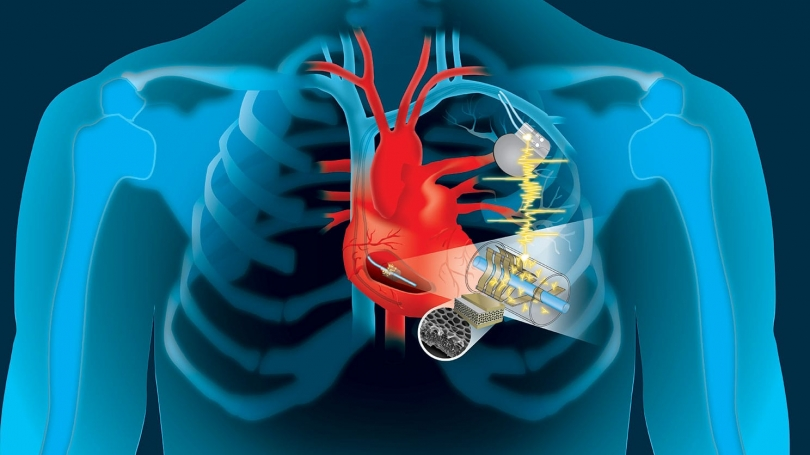 pacemakers implanted graphic